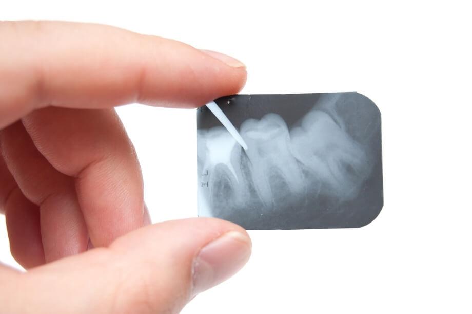 wykorzystanie implantów