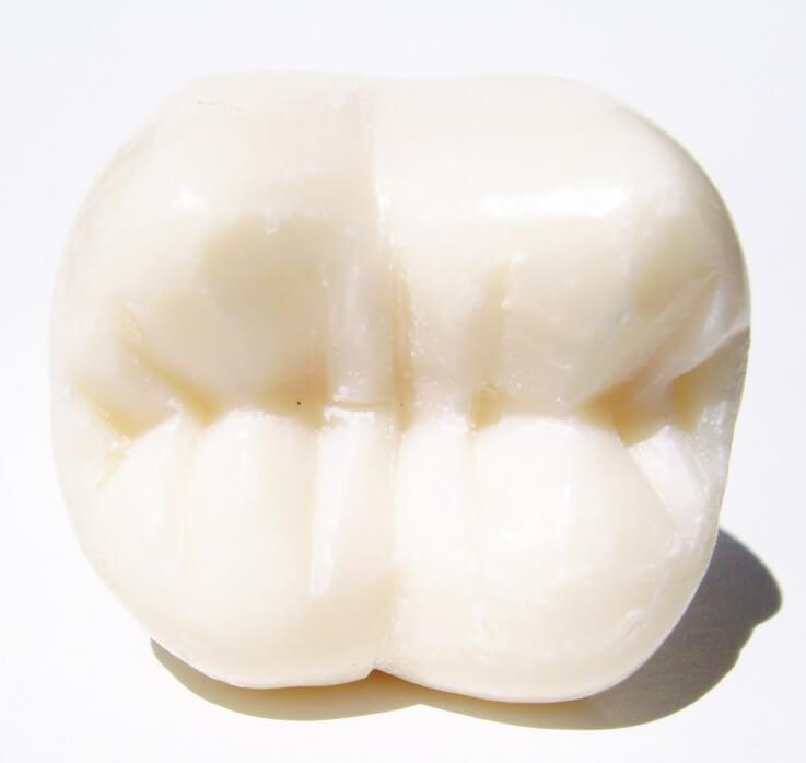 Implantacja zębów