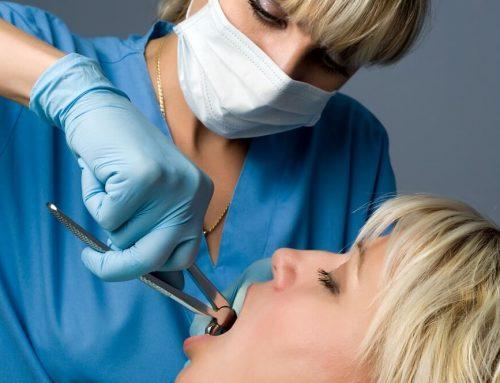Rodzaje zabiegów w chirurgii stomatologicznej